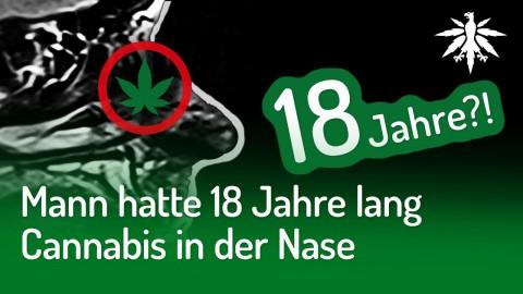 Mann hatte 18 Jahre lang Cannabis in der Nase | DHV-Audio-News #225